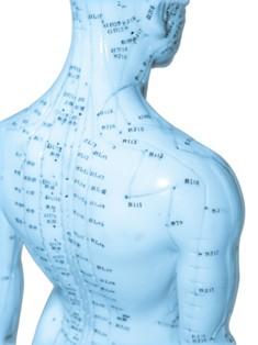 נקודות דיקור בגוף