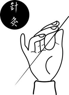 מחט דיקור סיני מסורתי